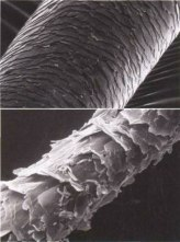 Microscopic image of hair. Strikingly similar to tree bark on this scale